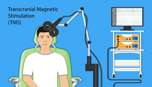 Pacific Psychiatric Centers - Blog - Interventional Psychiatric Treatments - Transcranial Magnetic Stimulation